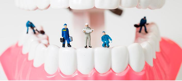 http://stomatologis.ru/implantatsiya/implantatsiya-pod-klyuch.html
