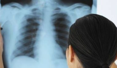 Препараты от обструктивных заболеваний легких