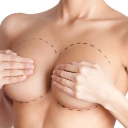 Показания к увеличению груди
